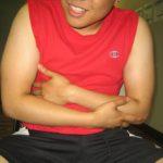 antral ulcer